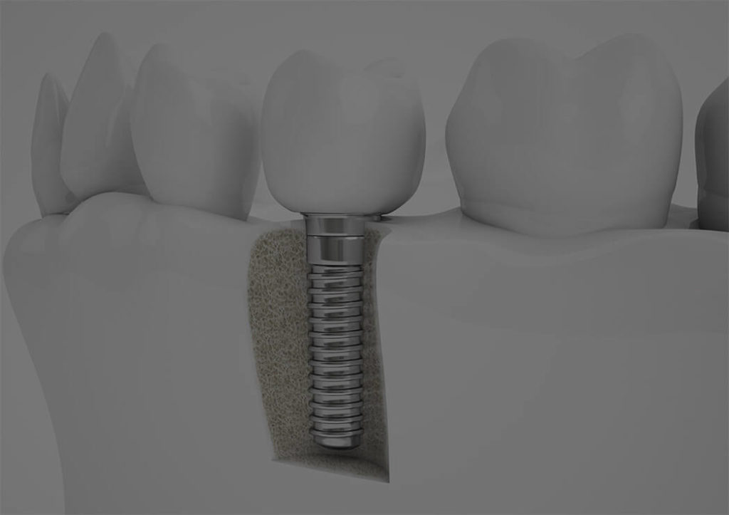 Dental Implants York County