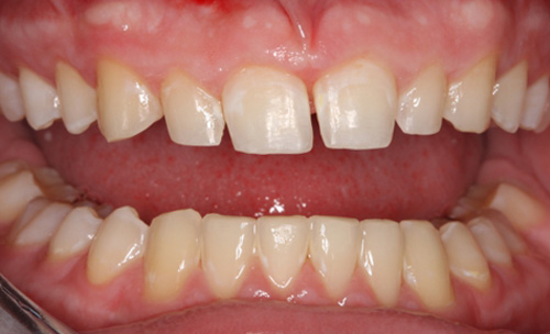 After Combining Orthodontics and Cosmetic Dentistry York County