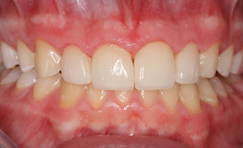 After Combining Orthodontics and Cosmetic Dentistry