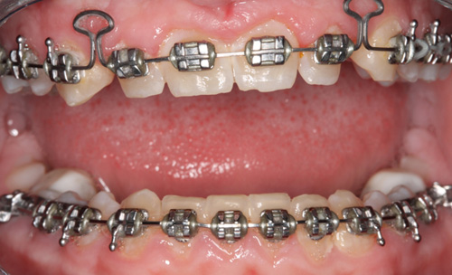 Before Combining Orthodontics and Cosmetic Dentistry