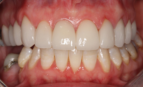 After New Smile Closeup York County