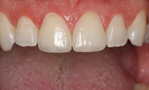 After One Crown & One Veneer