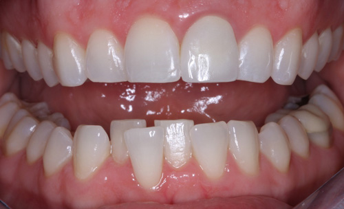 After Fixing a Discolored Tooth York County