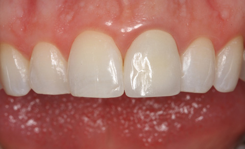 After Fixing a Discolored Tooth