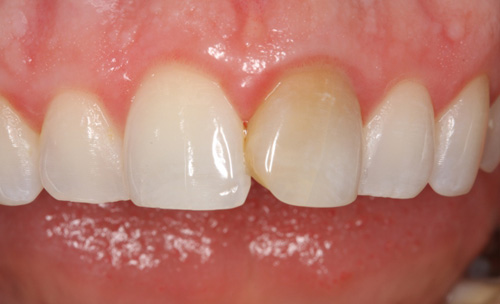Before Fixing a Discolored Tooth