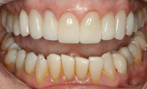 After Rebuilding a Smile & Confidence York County