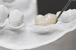 Dental Crowns by Dr. Bell
