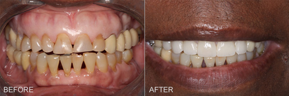 Smile Makeover by Dr Bell