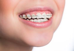 Traditional Orthodontics York County