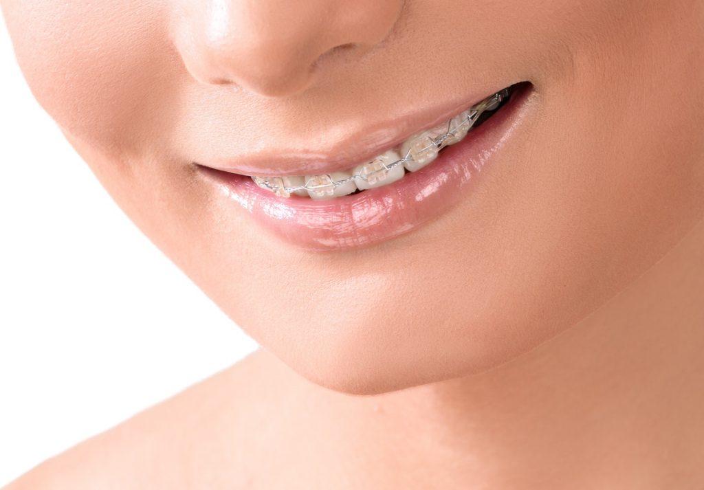 Straighten your smile Hellam & York, PA