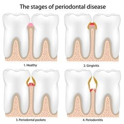 Stages of periodontal disease at The Center for Dental Excellence
