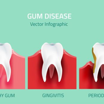 Periodontal (gum) disease tips and treatment Hellam
