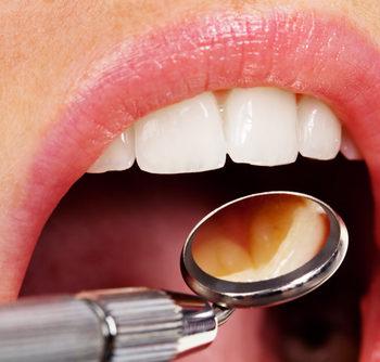 Dental crown replacement Hallem, PA