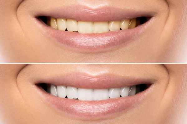Dr. Gordon Bell explains what professional teeth whitening can and cannot accomplish.