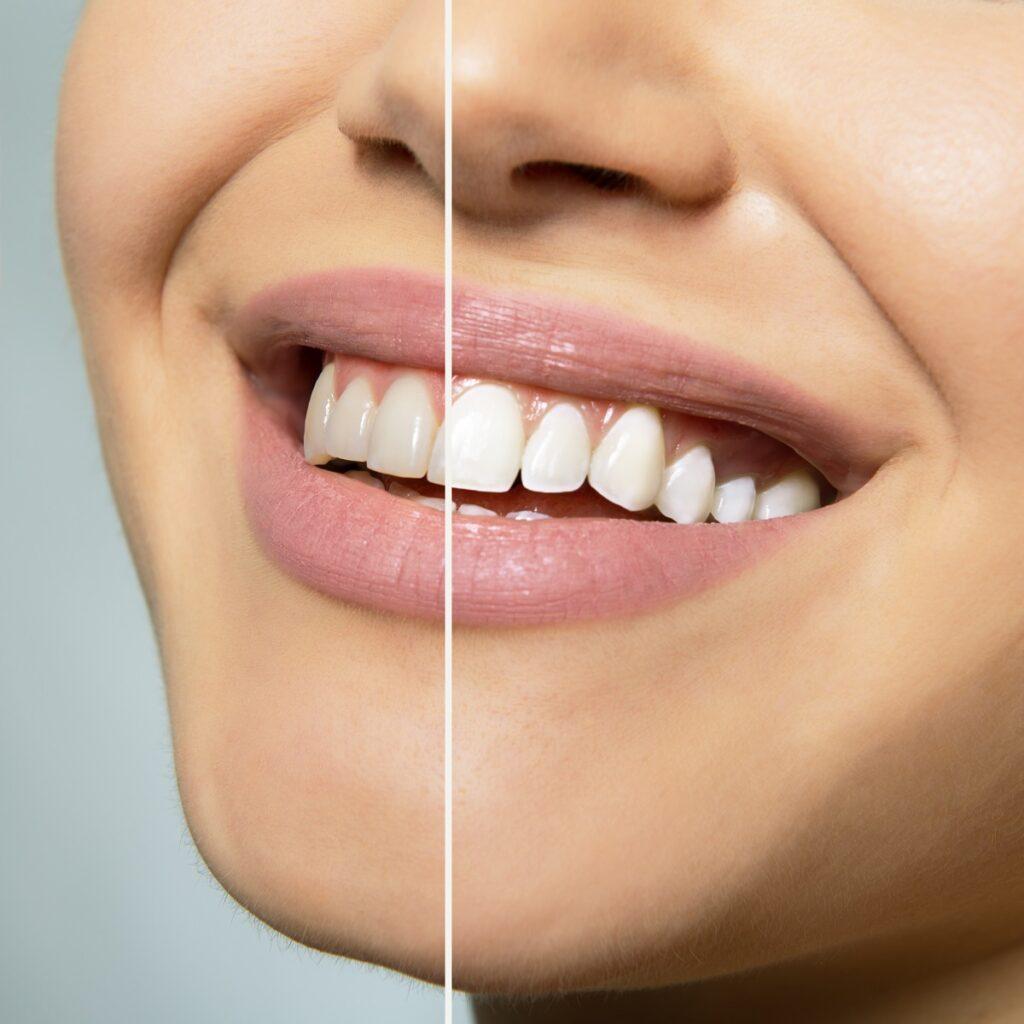 Teeth whitening in Hellam & York, PA