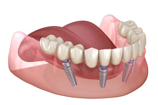 Dentures in Hellam & York, PA