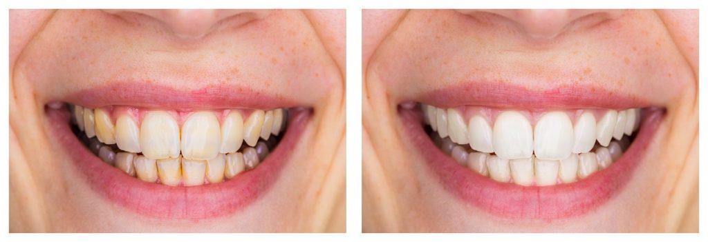 Tooth whitening in Hellam & York, PA